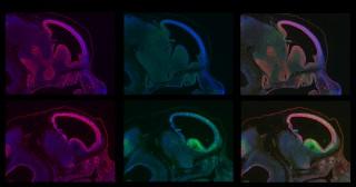 정상적으로 발달한 뇌(위)와 BRCA1 유전자의 돌연변이로 제대로 발달하지 못한 뇌(아래). 녹색으로 빛나는 부분이 세포가